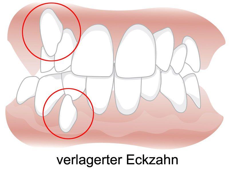 Freilegung verlagerter Zähne - Zahnarzt Luxemburg, Dr. Dr. Jakobs